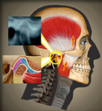 TMJ Oregon Image of Skull with Muscles reveled